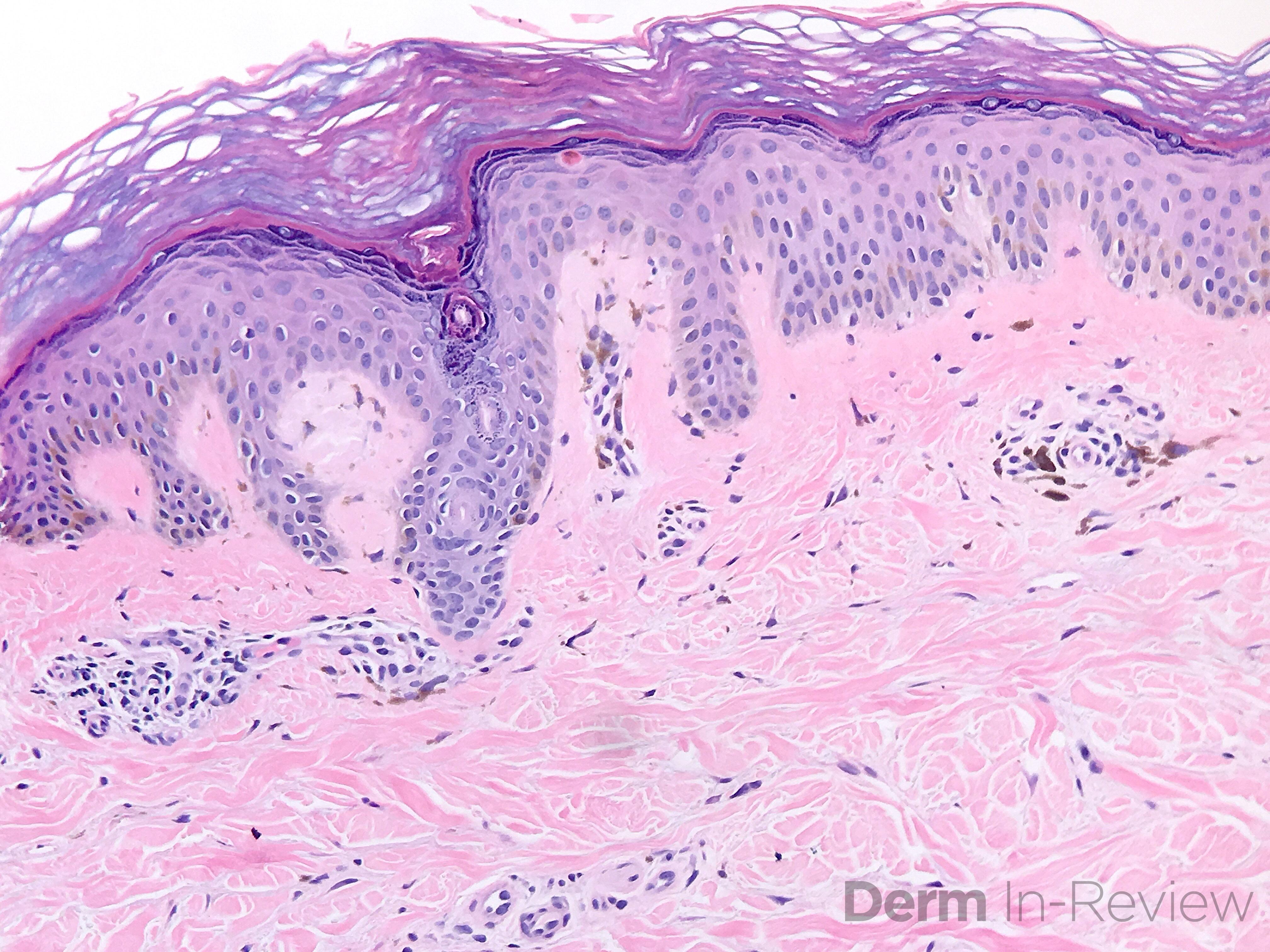 11.18-lichen-amyloid
