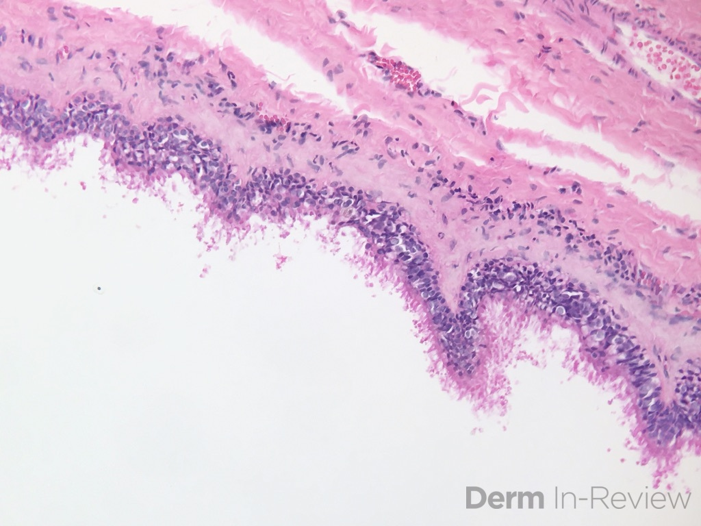 11.7 Bronchogenic cyst