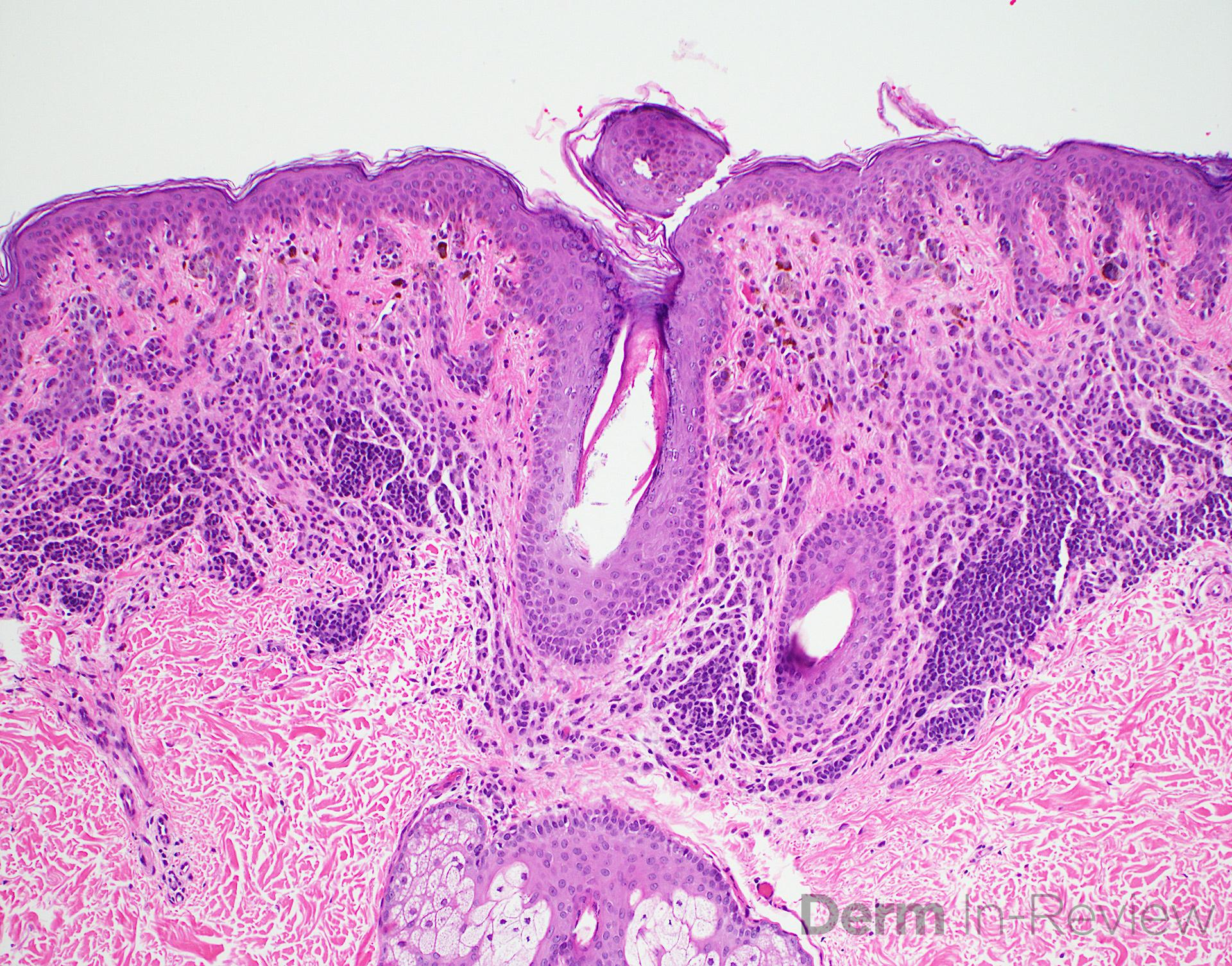 12.2A compound melanocytic nevus