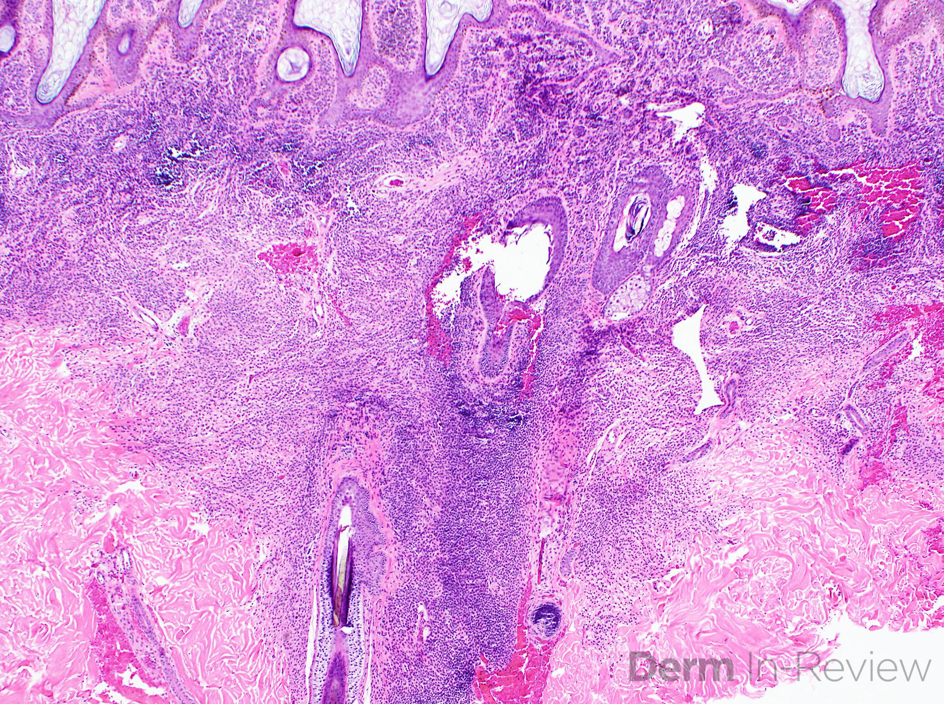 12.2B congenital melanocytic nevus