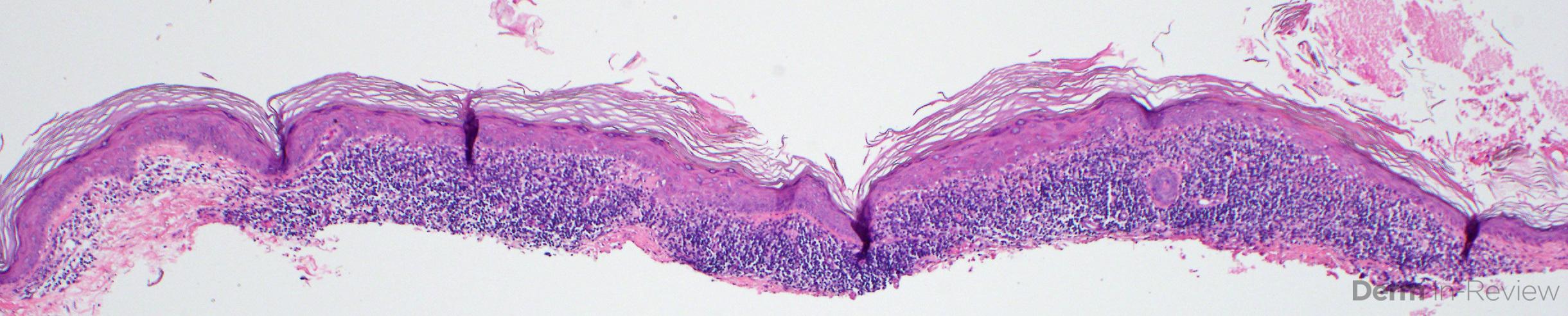 13.5 Benign lichenoid keratosis