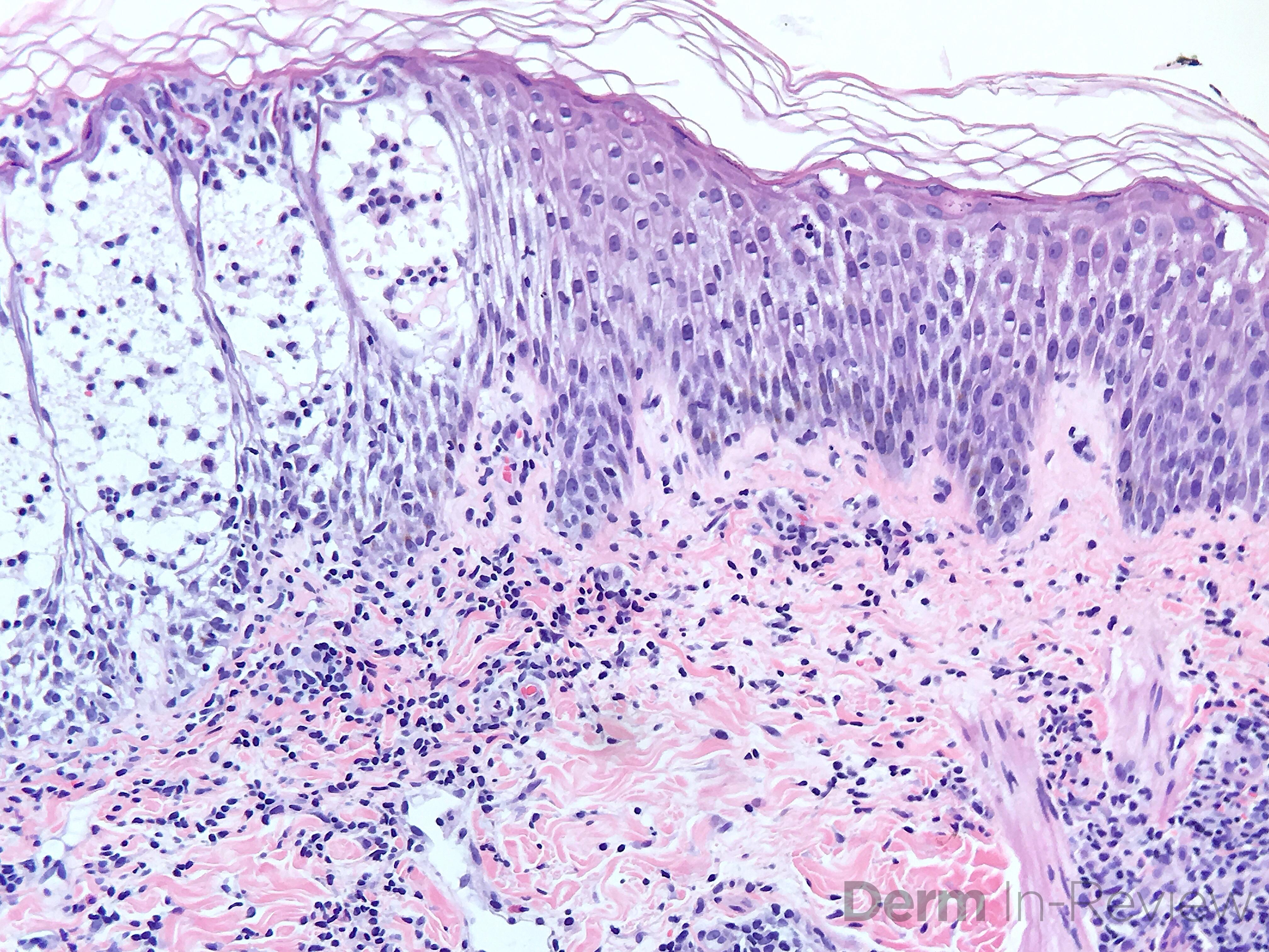 3.1-Acute-spongiotic-dermatitis