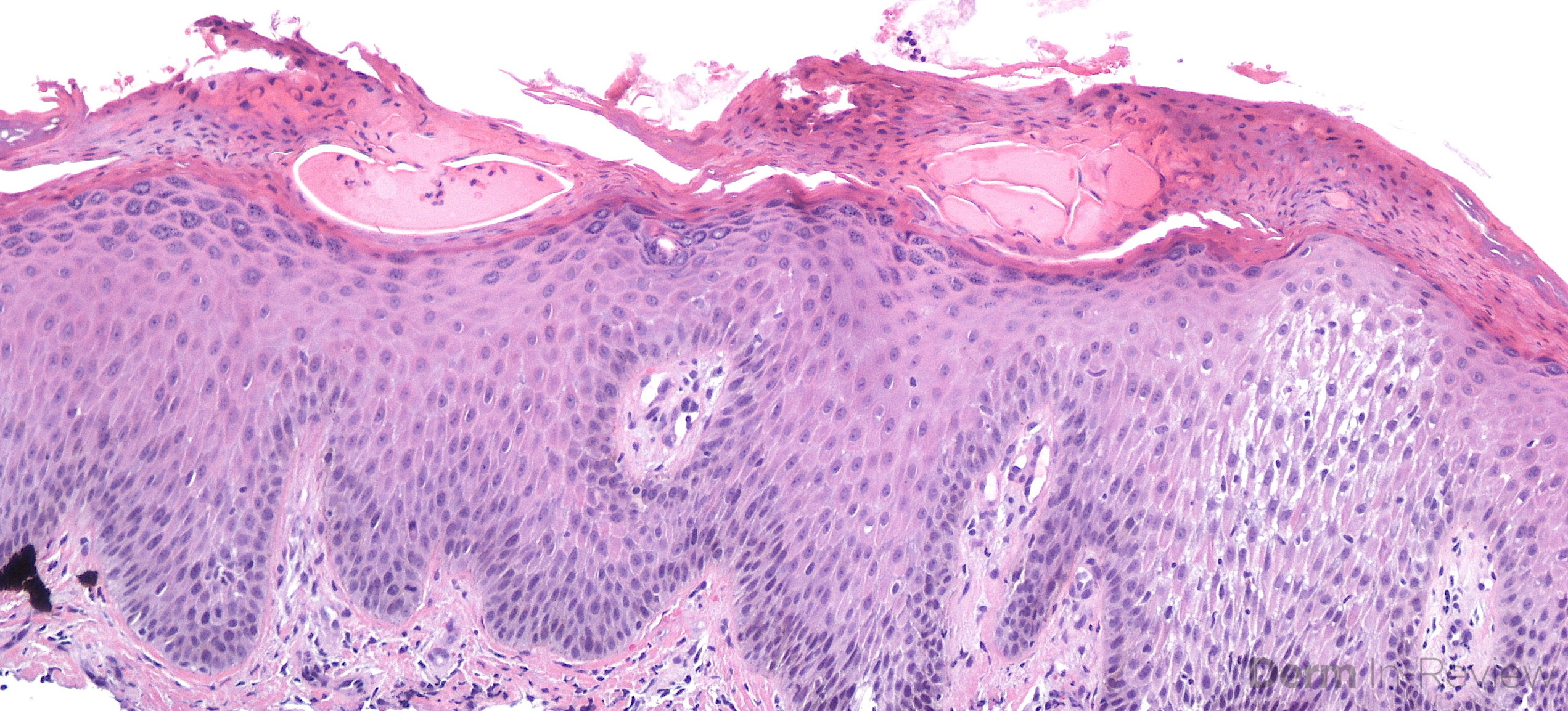 3.2 Subacute spongiotic dermatitis