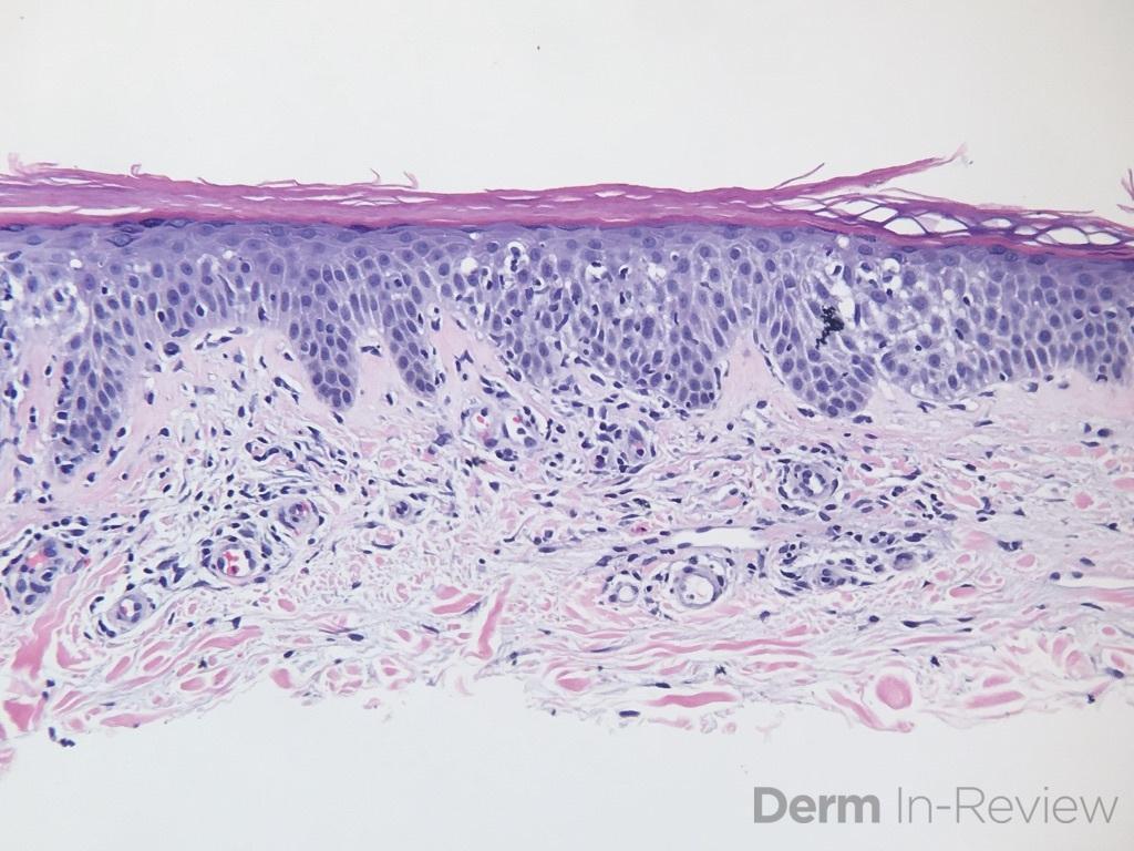 3.6 Stasis dermatitis