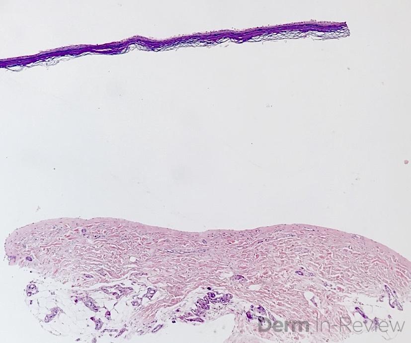 5.7 epidermolysis bullosa acquisita