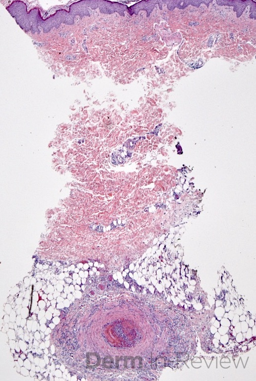 6.2 polyarteritis nodosa