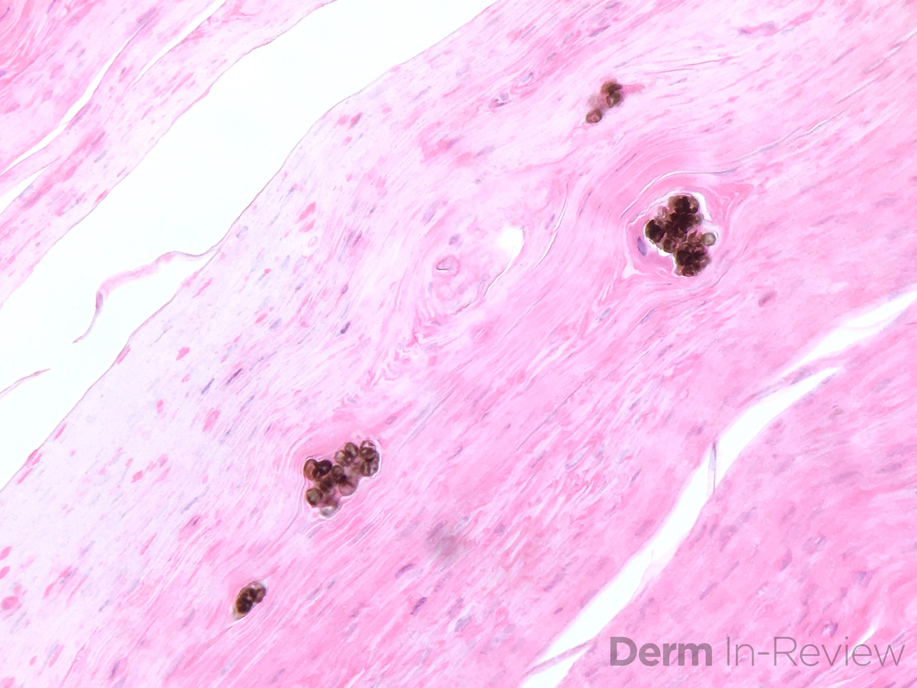 8.13 Chromoblastomycosis