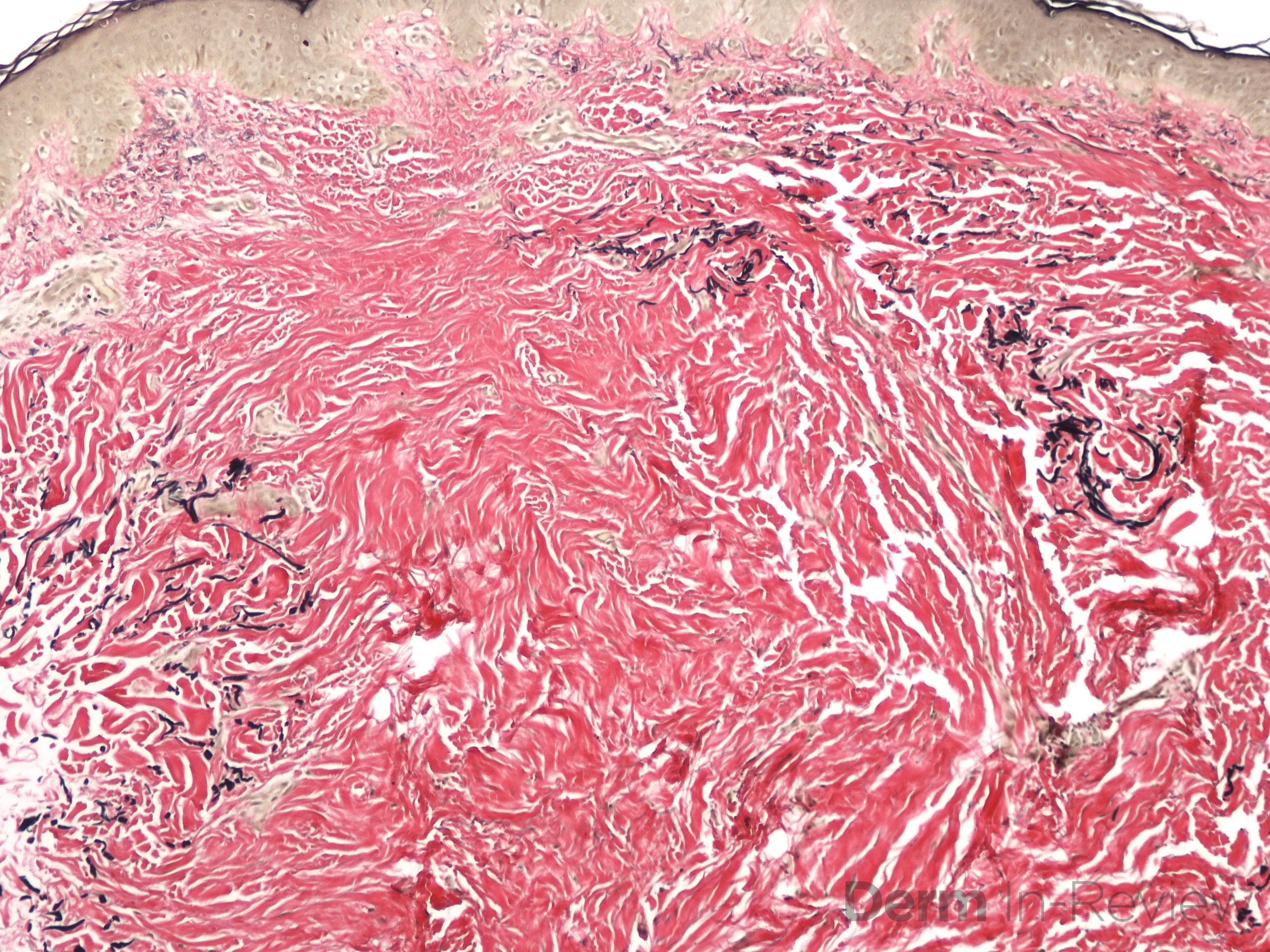 9.12 Anetoderma, elastic stain