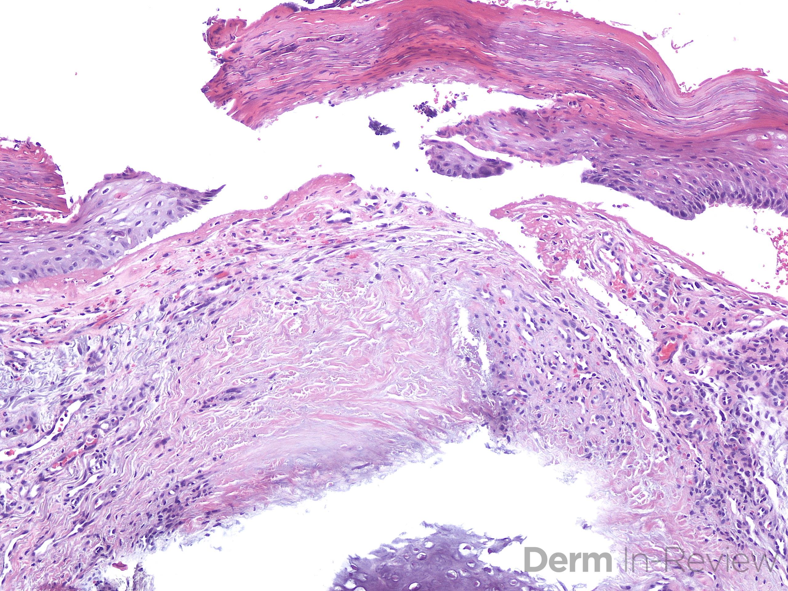 9.7 chondrodermatitis nodularis helicis
