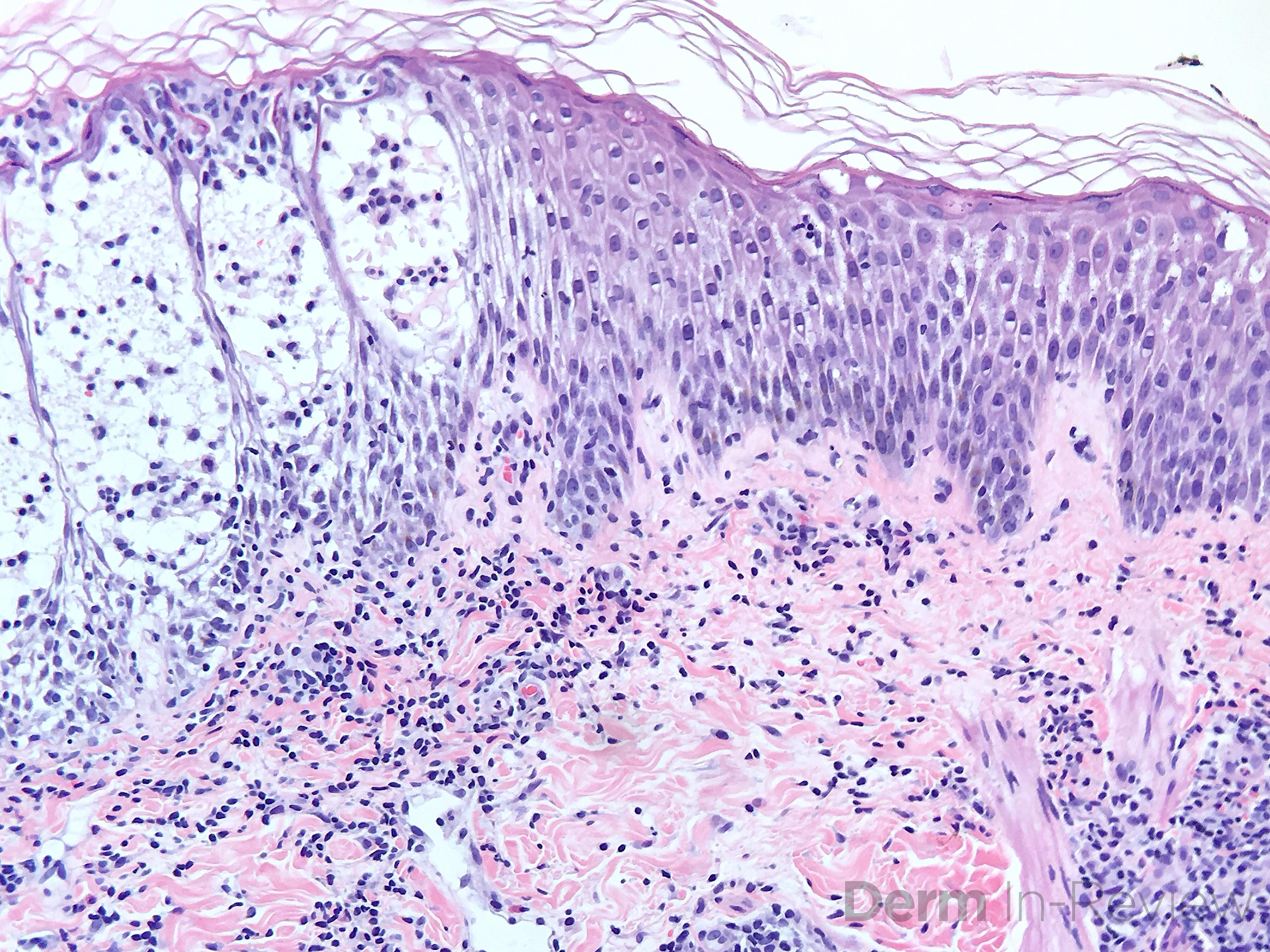 Figure 5.3.7 Spongiotic dermatitis.