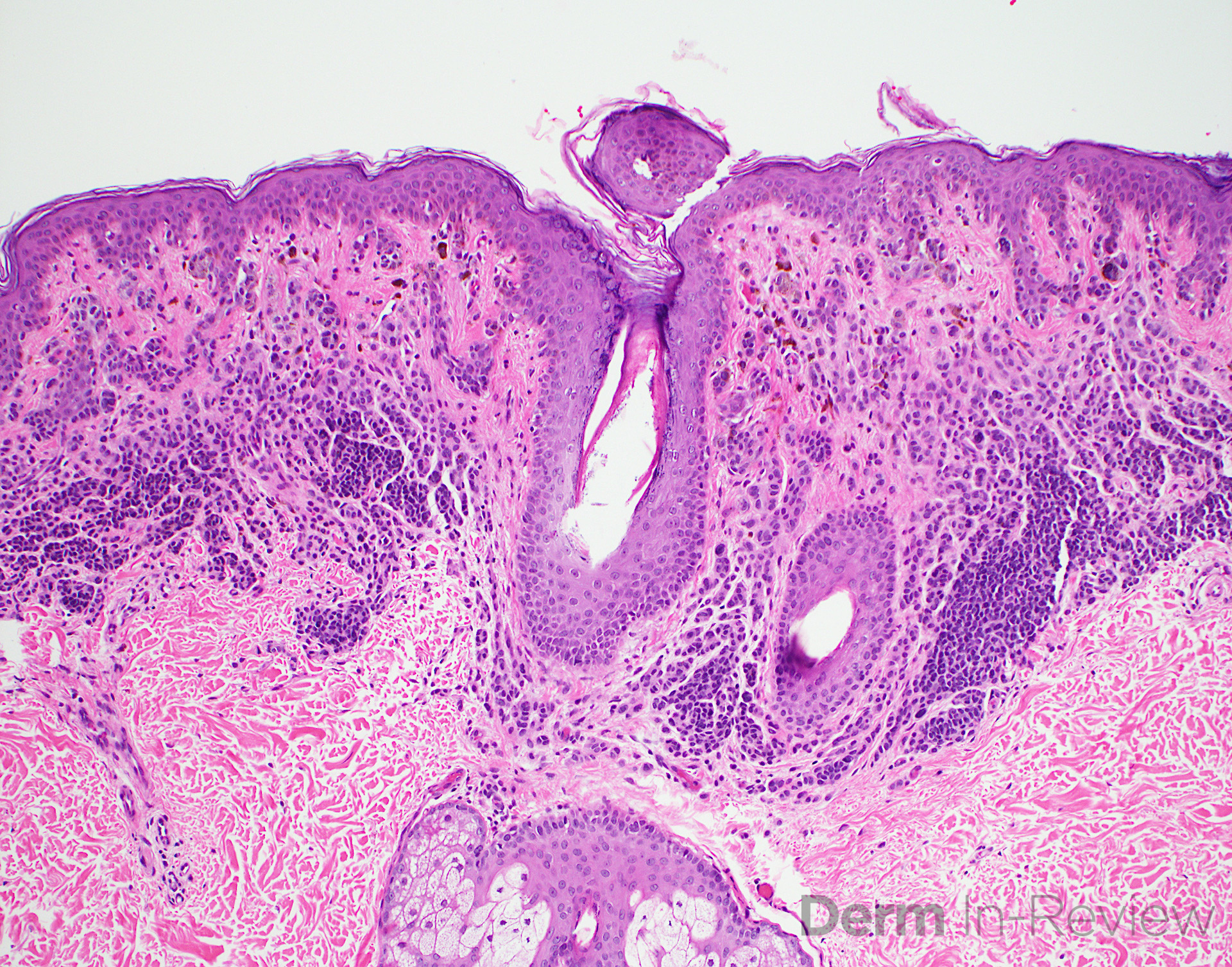 A Compound melanocytic nevus