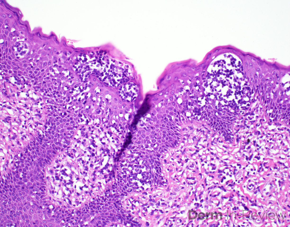 B Mycosis fungoides, plaque stage